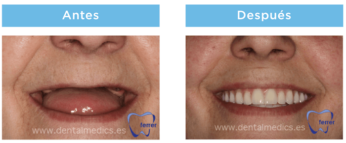 antes y despues protesis dental hibrida