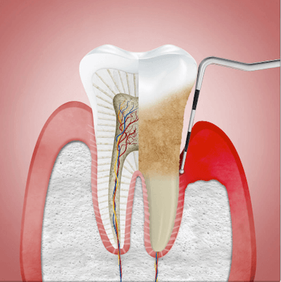 periodontitis soluciones de tratamiento