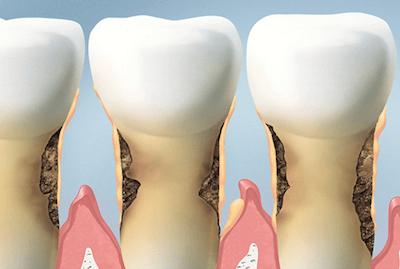 tratamiento de la enfermedad periodontal Madrid