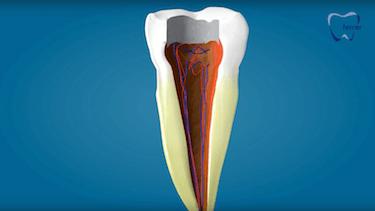endodoncia multirradicular nervios duele