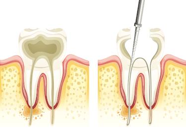 endodoncia multirradicular proceso
