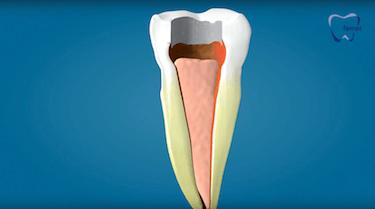 endodoncia multiradicular segunda fase