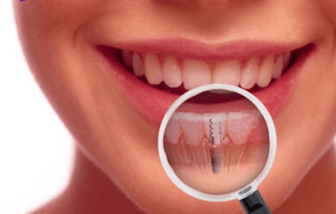 Examen y diagnostico implantes dentales