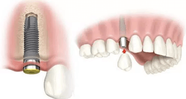 colocacion corona sobre implante dental