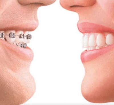 Ortodoncia estética con brackets de zafiro - Clínica dental Dr. Ferrer | Madrid