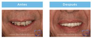 protesis dental precio