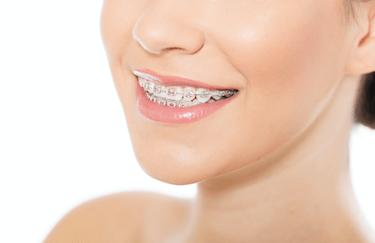 higiene dental brackets