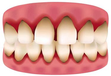 sangrado de encias enfermedad periodontal