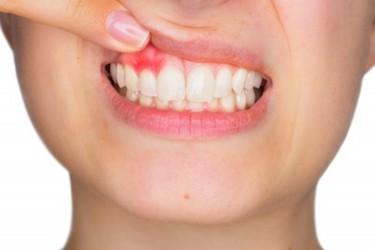 periodontitis avanzada encias