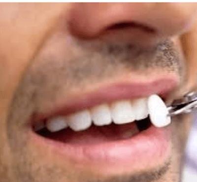 Tipos y precio de carillas dentales - Clínica dental Dr. Ferrer   Madrid