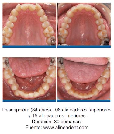 antes y despues y ortodoncia