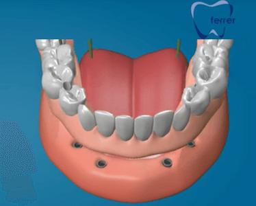 protesis dental fija con implantes protesis hibrida