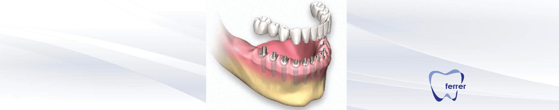 Promoción Implantes dentales