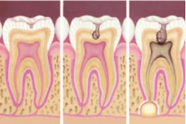 dolor de dientes y encias causas