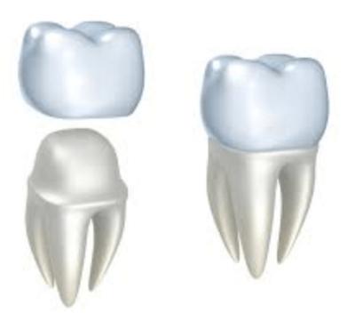Fundas dentales: tipos y precio - Clínica dental Dr. Ferrer   Madrid