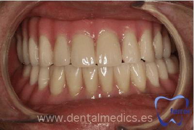 prótesis dental fija con implantes Dr Ferrer