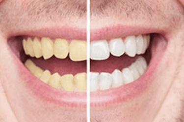 Blanqueamiento dental en casa con ferulas