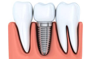 cirugia de implantes dentales