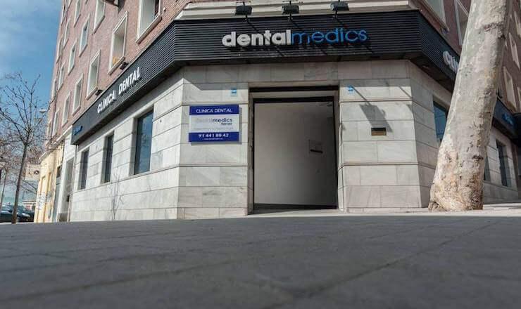 Precio de una Sobredentadura con 4 implantes dentales