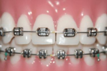 ortodoncia brackets metalicos