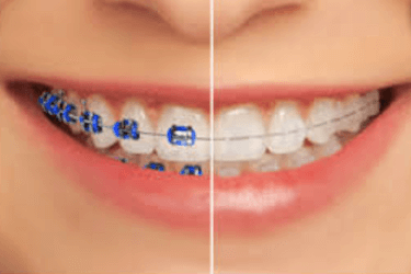 brackets de color transparente