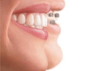 ortodoncia tipos y precio