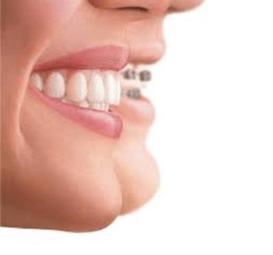 Tratamientos de ortodoncia: tipos y precio - Clínica dental Dr. Ferrer | Madrid