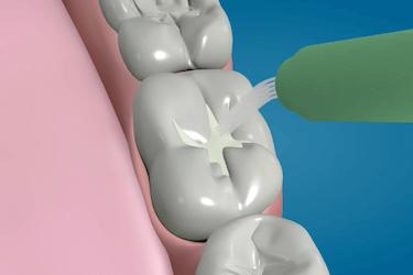 poner selladores dentales
