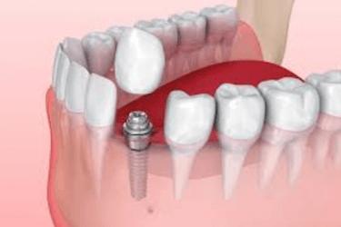 complicaciones implantes dentales despues