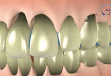 encías retraídas gingivitis