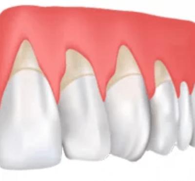 ¿Tienes las encías retraídas? Causas y Soluciones - Clínica dental en Madrid del Dr. Ferrer