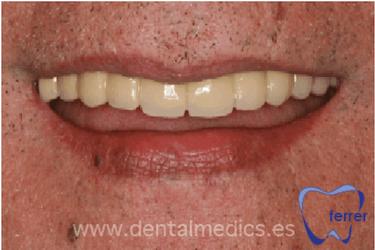implantes dentales en toda la boca
