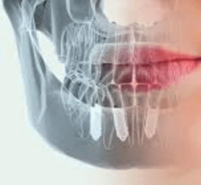 Complicaciones de los implantes dentales - Clínica dental Dr. Ferrer | Madrid