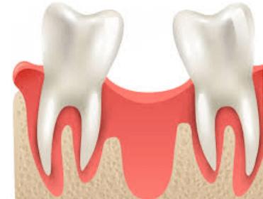 complicaciones de los implantes antes