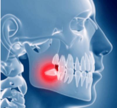 5 Consejos para aliviar el dolor de las muelas del juicio o cordales - Clínica dental en Madrid del Dr. Ferrer