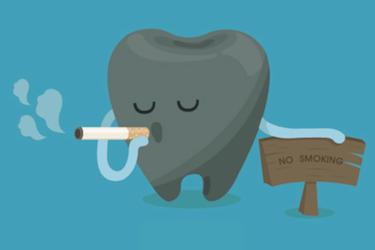 tiempo sin fumar después de un implante dental