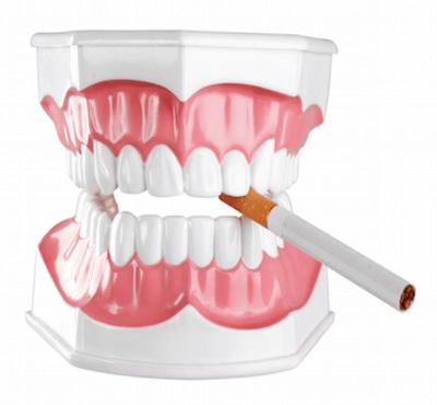 Implantes dentales y tabaco: tiempo sin fumar después de un implante - Clínica dental Dr. Ferrer | Madrid