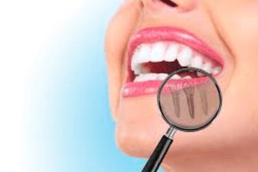 implante titanio y tabaco