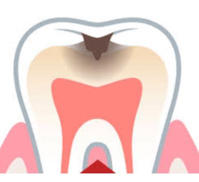 ¿Cuál es el precio de una endodoncia? - Clínica dental Dr. Ferrer | Madrid