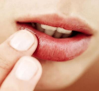 Llagas en la boca: causas y remedios - Clínica dental Dr. Ferrer | Madrid