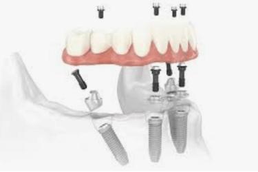 Implantes dentales en el mismos dia