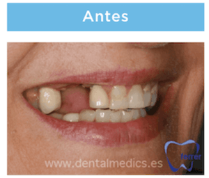 implantes dentales multiples antes