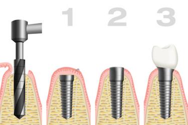 Proceso colocación implantes