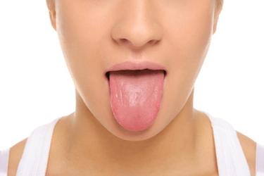 limpeza de la lengua