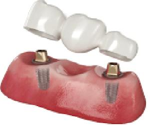2 implantes dentales y protesis