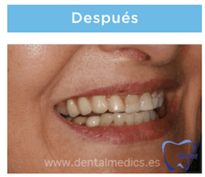 implantes multiples despues