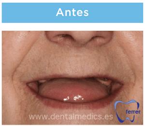 protesis con implantes dentales antes