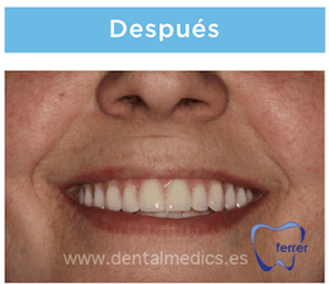 protesis con implantes dentales despues