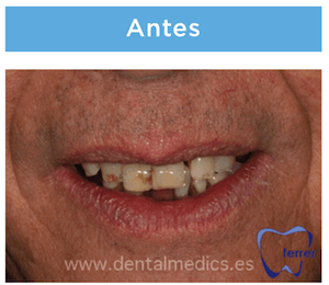 implantes dentales antes
