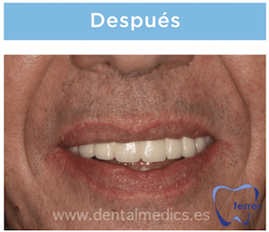 implantes dentales despues